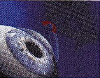 Corriger Myopie Naturellement Presbytie Dr Eric Tabare